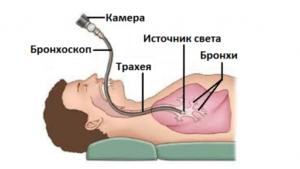 Что такое бронхоскопия легких? Для чего и как ее делают