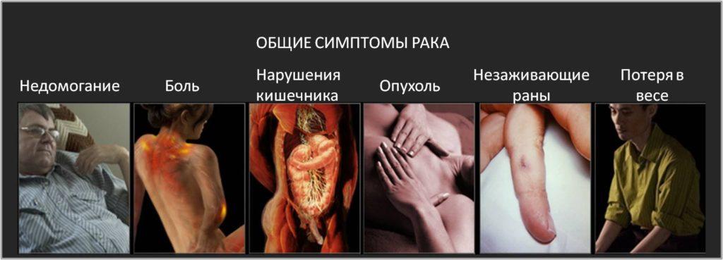клиниках как распознать рак на ранней стадии кости объявления