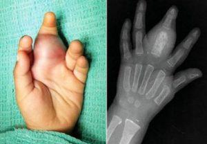 саркома руки