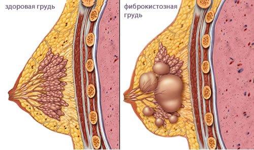 Фиброаденоматоз