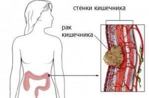 Опухоль в кишечнике: симптомы или признаки у женщин на ранней стадии и лечение после удаления, стадии заболевания и как его определить