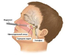 Удаление аденомы гипофизы и работа кишечника