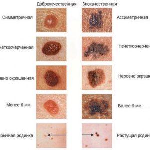 фото - меланома кожи начальная стадия