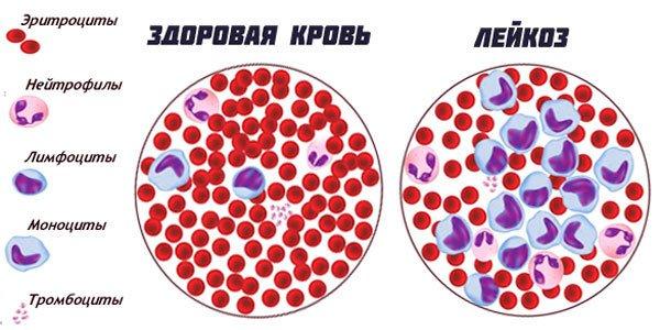 рак крови фото