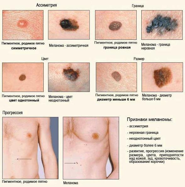 что такое меланома кожи фото
