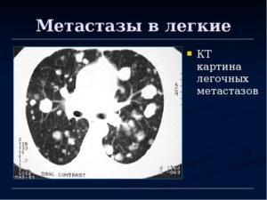 Метастазы в легких на кт