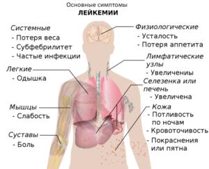рак крови симптомы у женщин фото