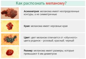 меланома начальная стадия симптомы фото