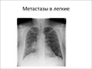 Метастазы при раке легких симптомы