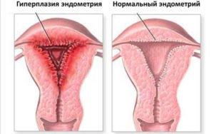фото гиперплазия эндометрия матки