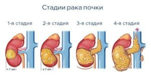 Рак почки лечение или ремиссия