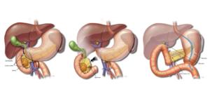 Симптомы рака поджелудочной железы у мужчин