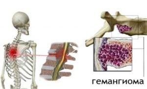 Какие симптомы при гемангиоме позвоночника