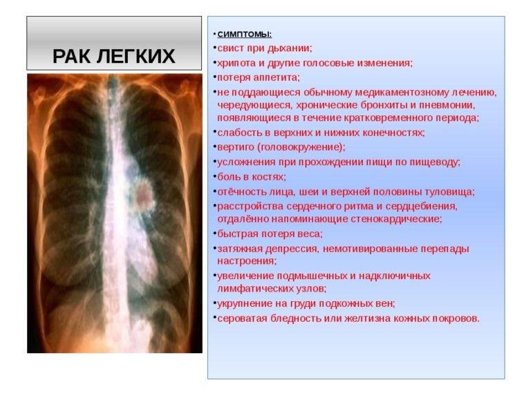 У пациента может болеть плечевой пояс, такое явление называется синдромом панкоста.