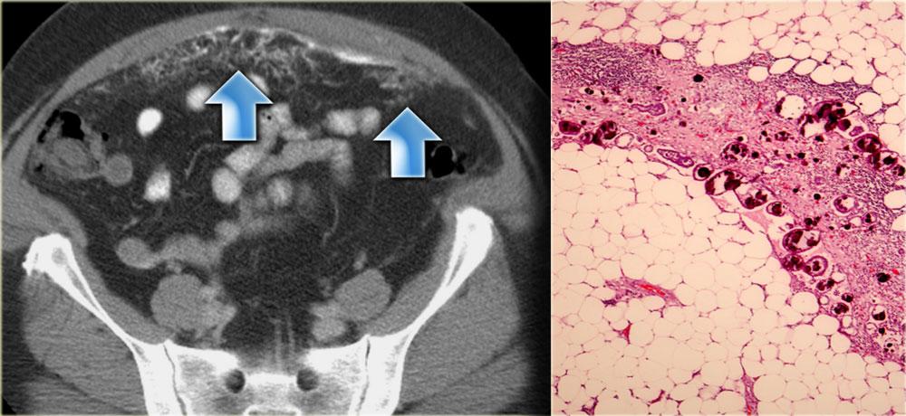 Канцероматоз брюшины лечение народными средствами thumbnail