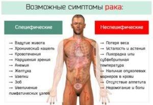 симптомы и признаки рака