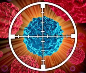 Хромофобный рак почки последствия — Здоровая печень