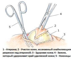 хирургическое удаление атеромы