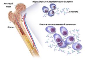 Миеломная болезнь лечение и прогноз