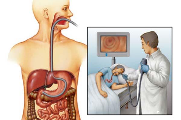 procedures about gastrointestinal diagnostic