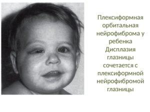 нейрофиброма у детей