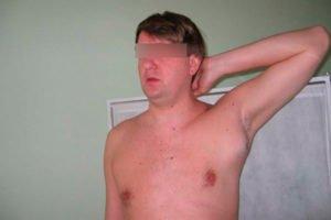 воспаление подмышкой у мужчины