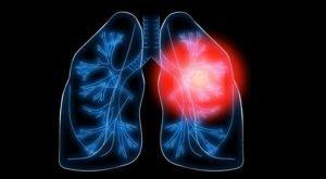 болезнь легких
