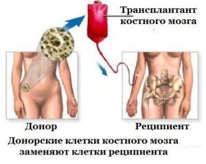 Прогноз при остром лейкозе
