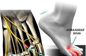Неврома Мортона - симптомы, лечение и что это такое
