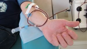 Аллогенная трансплантация стволовых клеток