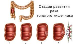 Этапы лечения онкологических заболеваний