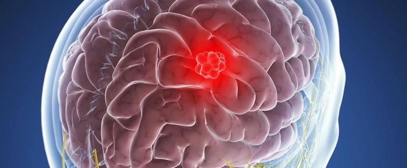 Какие симптомы при опухоли головного мозга