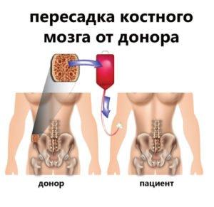 пересадка костного мозга от донора