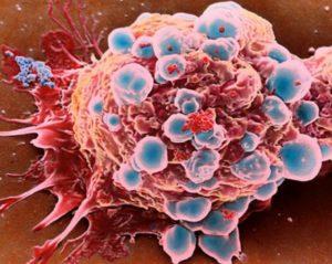 Признаки интоксикации организма при раке