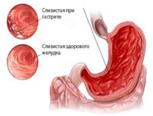Недифференцированный рак желудка лечение - Лечение гастрита