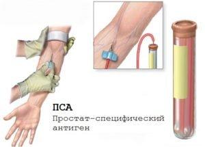 Лечение рака предстательной железы (простаты)