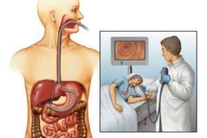 Низкодифференцированный рак желудка лечение