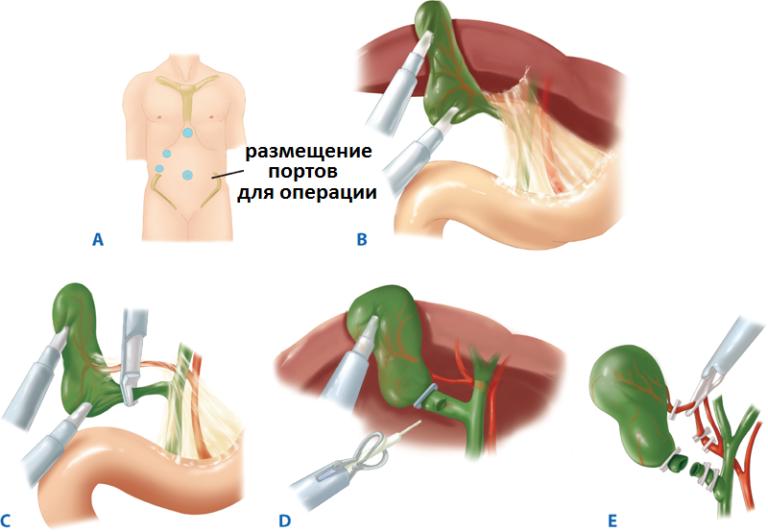 Операция Холецистэктомия Диета. Какую диету нужно соблюдать после удаления желчного пузыря?