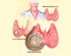 Рак щитовидной железы : симптомы и лечение рака щитовидной железы