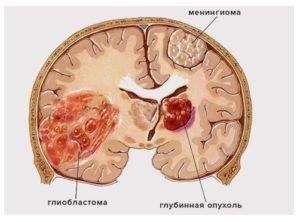 глиобластома, менингиома и глубинная опухоль