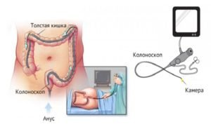колоноскопия - метод диагностики полипов