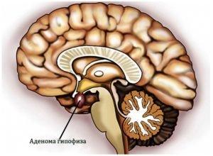 Микроаденома гипофиза - симптомы, лечение и последствия