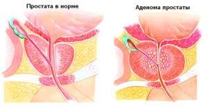 Заболевание рак простаты и лечение