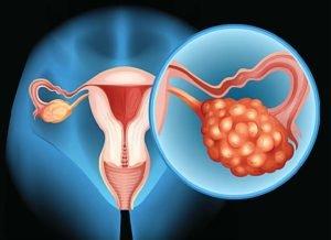 Опухоль левого яичника