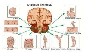 опухоль головного мозга симптомы