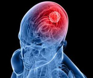 Типы опухолей головного мозга и рак головного мозга