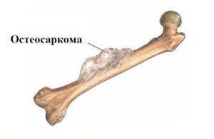 Саркома кости что это за заболевание
