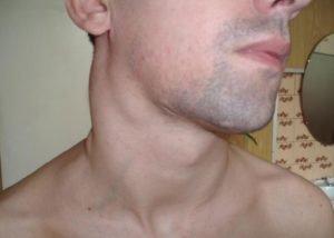 Увеличение лимфоузлов - признак онкологии
