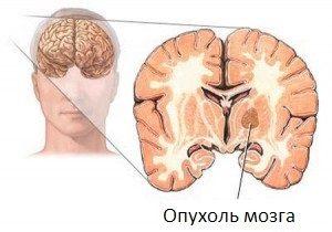 Отек легких и головного мозга