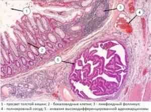 Аденокарцинома печени прогноз срока жизни